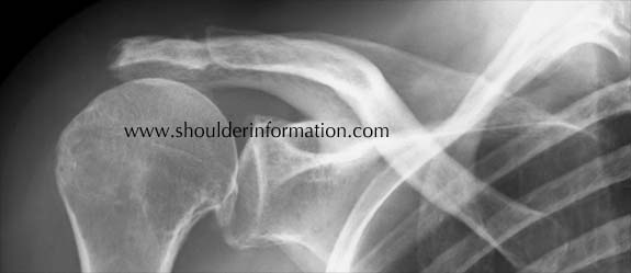 X-ray of a shoulder arthritis with cuff tear and typically leading to reversed shoulder prosthesis