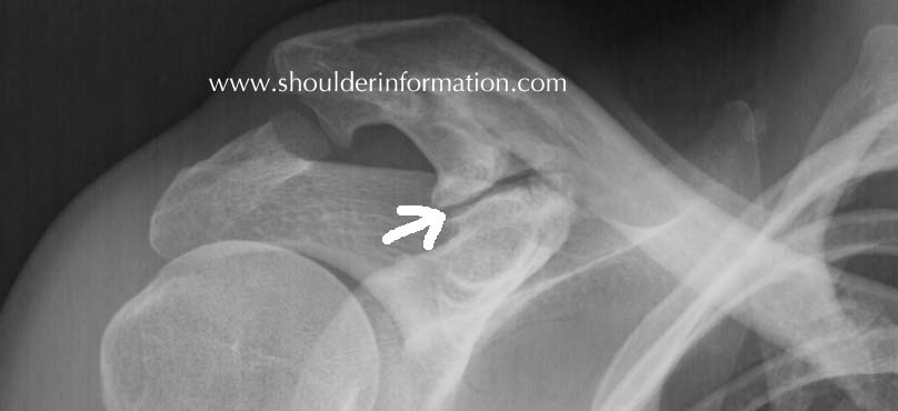 Clavicle Xray Coracoclavicular joint...