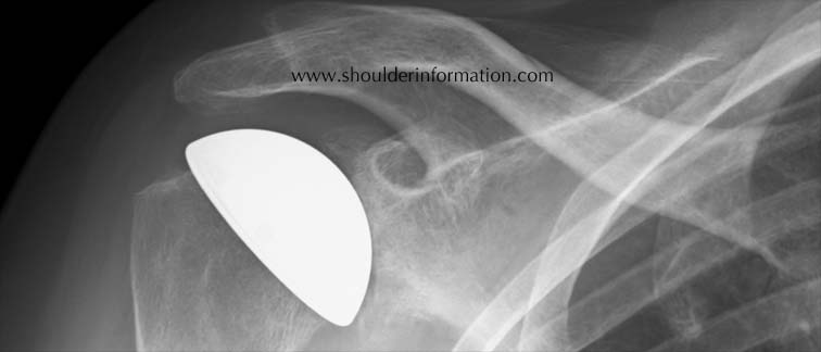 cup arthroplasty shoulder, surface replacement