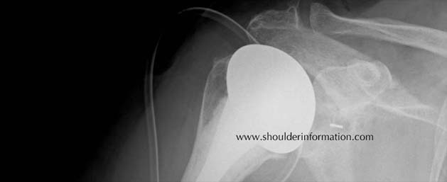 x-rax shoulder arthroplasty